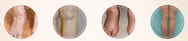 křečové žíly, nohy