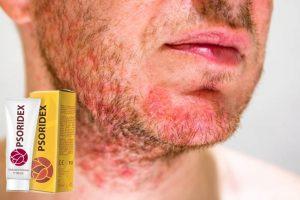 Psoridex Recenze – Přírodní vzorec pro aktivní zklidnění podrážděný obličej kůže!